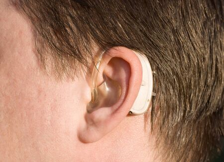 hearing aid: close-up of a man ear with a behind-the-ear-hearing device