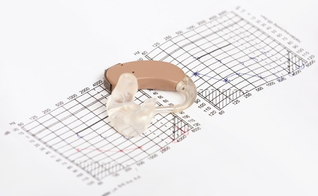 Hearing aid on an audiogram containing handwritten hearing curves