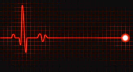 battement du coeur: impulsion graphique