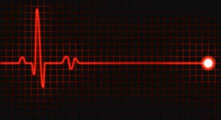 puls: puls wykres Zdjęcie Seryjne