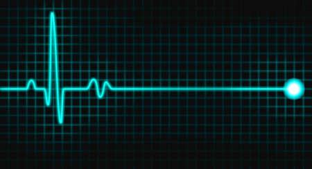 ritme: puls grafiek
