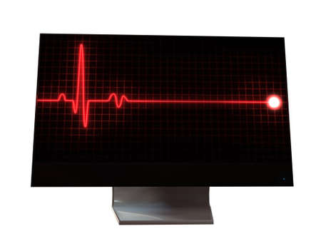 pulse sign on monitor photo