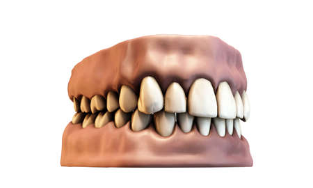 periodontics: teeth with gums isoalted on white background