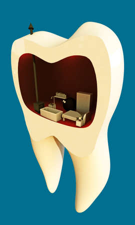 root canal: tooth house isolated on blue background Stock Photo