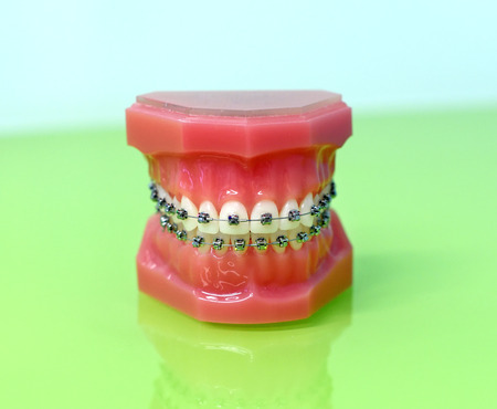 Model of dental appliance showing braces attached to the teeth of the upper and lower jaw in a closed frontal view Stock Photo