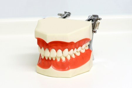 Dental model of upper and lower teeth showing a perfect closed bite over a white background