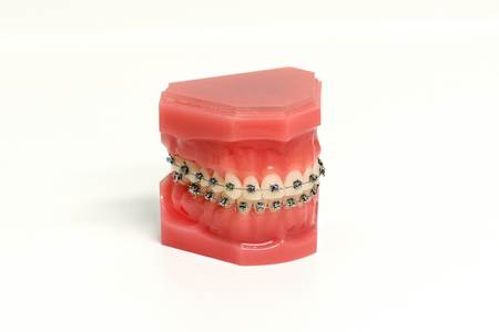Orthodontic mold of a dental appliance showing a set of upper and lower metal braces attached to teeth for corrective straightening and alignment over white