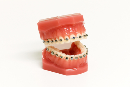 Dental model with orthodontic appliance showing metal braces attached to the upper and lower teeth to correct the bite by straightening and aligning them over white