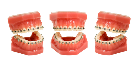 Teeth model, jaws with metal wired dental braces installed, isolated on white background and viewed from three different angles Stock Photo