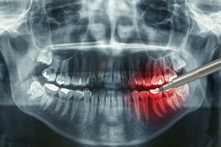 fix jaw: Dental xray with red painful area
