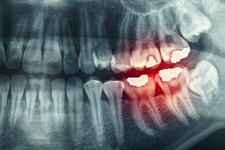 Dental xray with red painful area photo