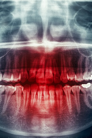 Panoramic dental X-Ray, horror skull photo