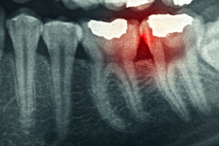 Dental xray detail with red painful area photo