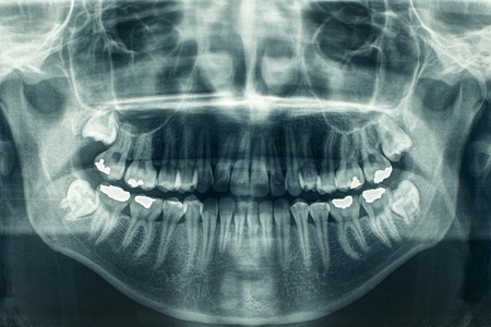 skeleton x ray: Panoramic dental xray