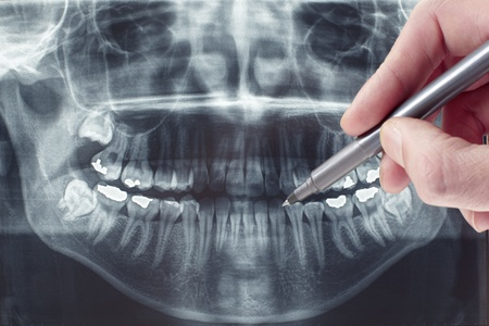 Panoramic dental xray, dentist shows painful area photo