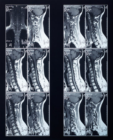 radiography: X-ray spine and neck radiography