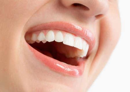 dentition: Donna sorridente con grande denti su sfondo bianco