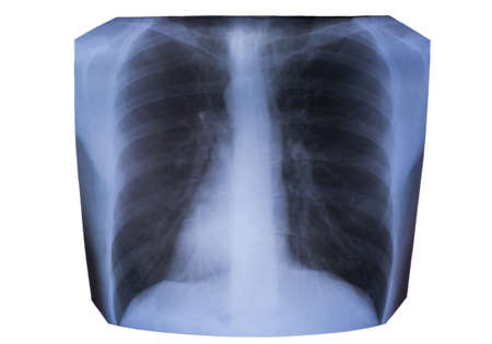 chest xray: Snapshot chest X-ray and light on a white background Stock Photo