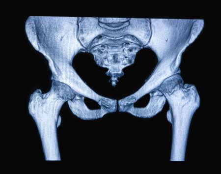 resonancia magnetica: La resonancia magn�tica de la mujer de cadera en el fondo negro Foto de archivo