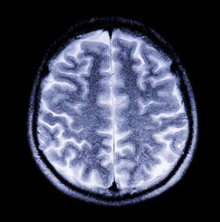 resonancia magnetica: Instant�nea del cerebro en secci�n transversal en la resonancia magn�tica