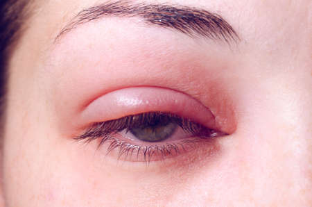 Barley infection on the eye. 스톡 콘텐츠