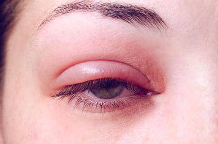 Barley infection on the eye. Foto de archivo