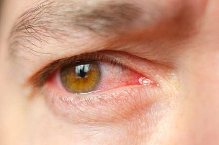 Nahaufnahme reizte infizierte rote blutunterlaufene Augen, Konjunktivitis.