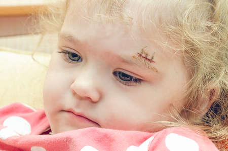 A little girl with a scar above her eyebrow, a deep wound sewn up.