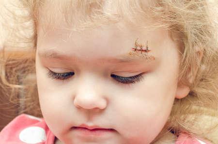 Een klein meisje met een litteken boven haar wenkbrauw, een diepe wond dichtgenaaid.