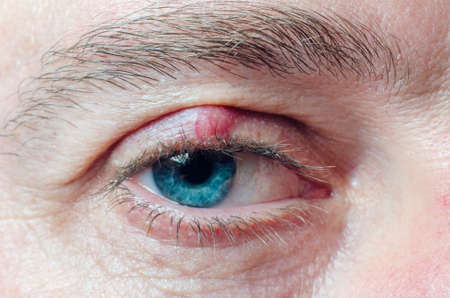 Chalazion on the eyelid of a man close-up.