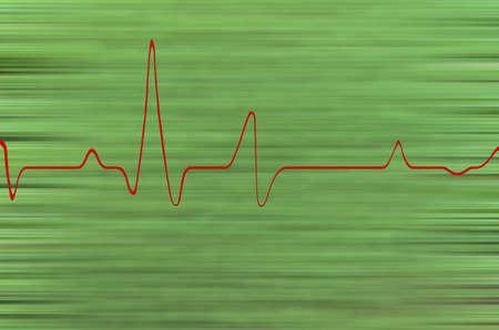 oscillations: Oscillations on a green background hexagram