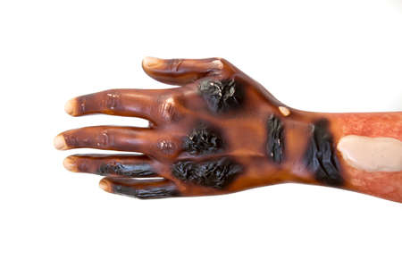 Third degree burn injury on a dummy hand. Front face of palm.