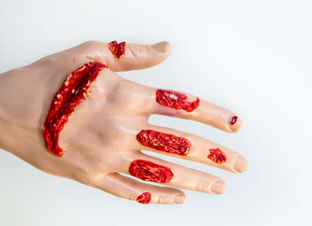 Multiple cut injuries on a dummys hand.
