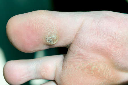 Plantar wart on big toe. Visible black dots warts. Shown the sole of the foot and toes. Stock fotó - 80507656