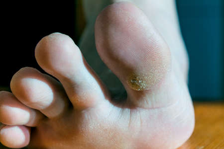 Plantar wart on big toe. Visible black dots warts. Shown the sole of the foot and toes.
