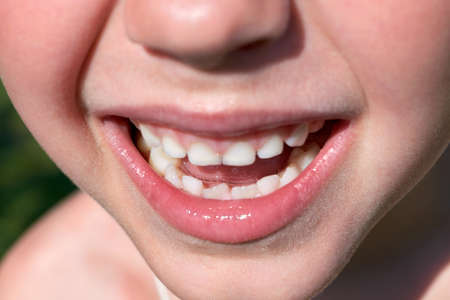 The smile of a small child. Mouth open, showing baby teeth. The two lower front teeth are adults. One tooth grows crooked. The child laughs and rejoices. Happiness, positive emotions.