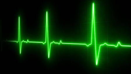 EKG Heart Line Monitor Stock Photo
