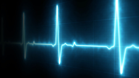 EKG Heart Line Monitor Stock Photo - 66681148