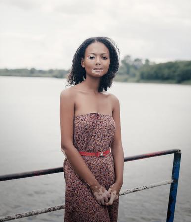 beautiful young brunette woman with vitiligo disease