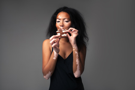 beautiful African girl with vitiligo in the studio eating black