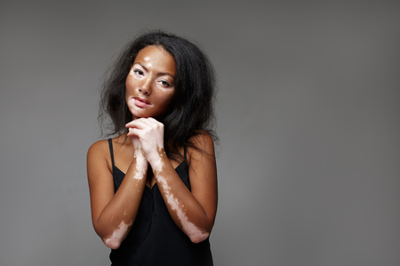 Beautiful African girl in studio with skin problems Vitiligo. studio shooting. On the dark gray background