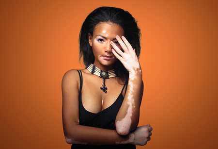 Beautiful African girl in studio with skin problems Vitiligo. studio shooting. On the terracotta color background with free space for your text