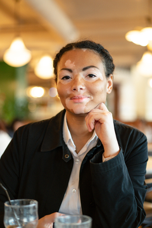 A beautiful young girl of African ethnicity with vitiligo sitting in a restaurant close up portrait of woman with skin problems. Stock Photo