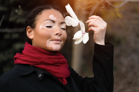 Beautiful african girl with vitiligo standing on the street sniffs spring flowers. Magnolia spring blossom. Portrait of a girl with skin problems. Autumn season. Woman lifestyle Stock Photo