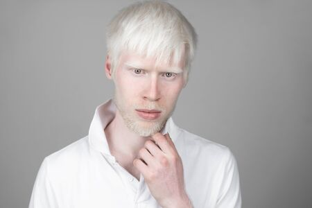 portrait of an albino man in studio dressed t-shirt isolated on a white background. abnormal deviations. unusual appearance. skin abnormality Banque d'images