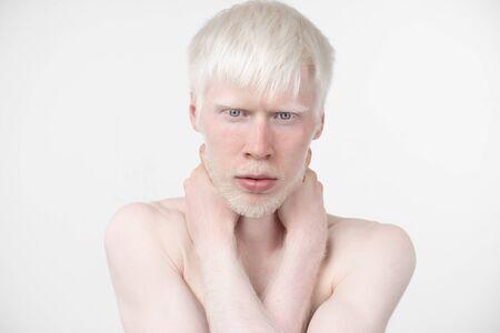 portrait d'un homme albinos en t-shirt habillé en studio isolé sur fond blanc. écarts anormaux. aspect inhabituel. anomalie de la peau