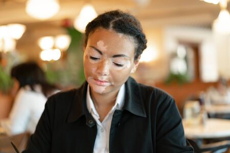 A beautiful young girl of African ethnicity with vitiligo sitting in a restaurant close up portrait of woman with skin problems. 版權商用圖片