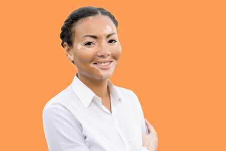 A beautiful young girl of African ethnicity with vitiligo isolated on the color background. 版權商用圖片