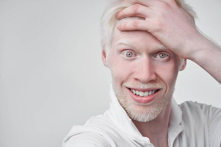 Happy smiling albino man white skin hair studio dressed t-shirt isolated white background abnormal deviations unusual appearance abnormality Beautiful people