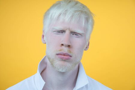 Sad albino man white skin hair studio dressed t-shirt isolated yellow background. abnormal deviations. unusual appearance. skin abnormality Beautiful people with special appearance.